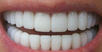 ¿Qué significa soñar con dientes?